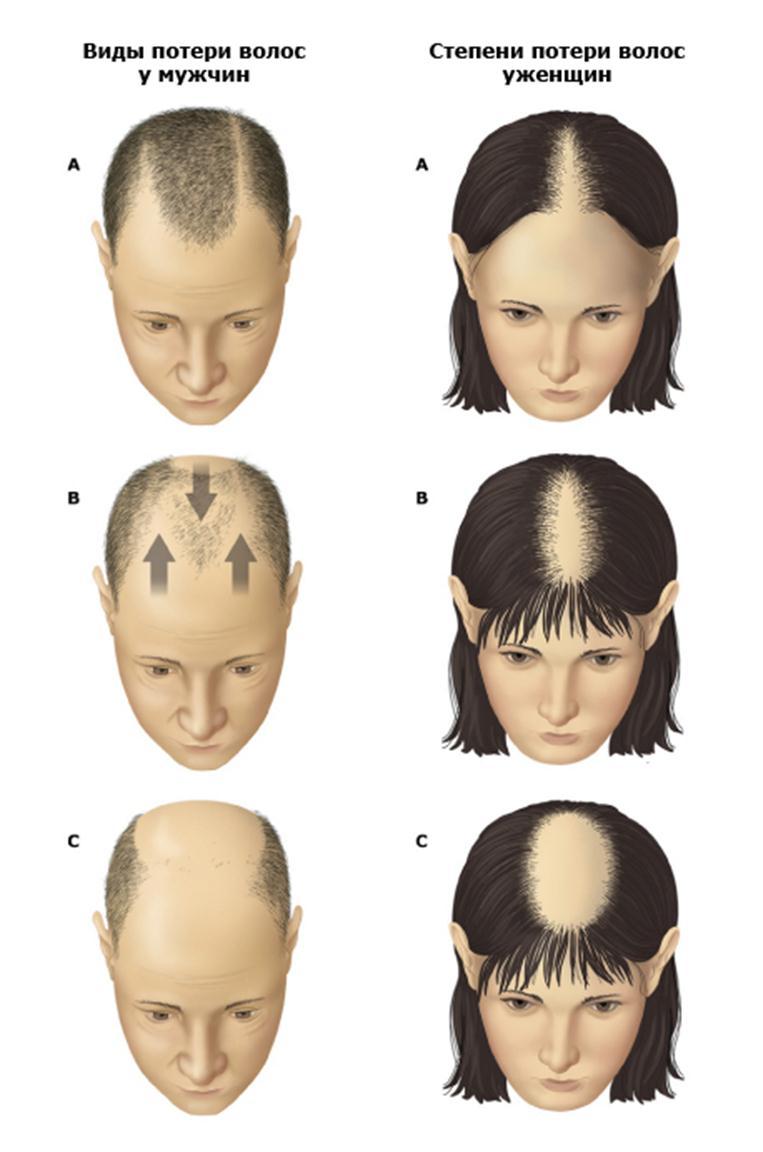 Потеря волос из-за избыточного количества мужских гормонов