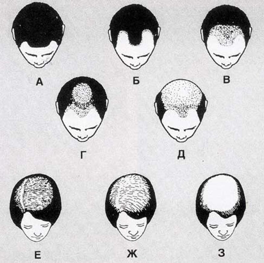 Степени выпадения волос у мужчин и женщин