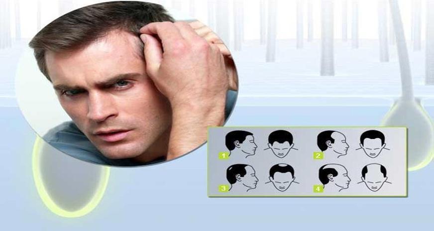 Чем лучше всего лечить волосы профессионально