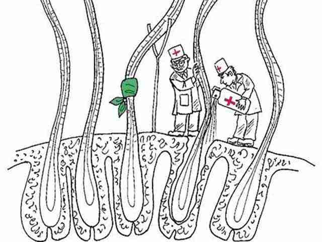 Восстановление структуры локонов