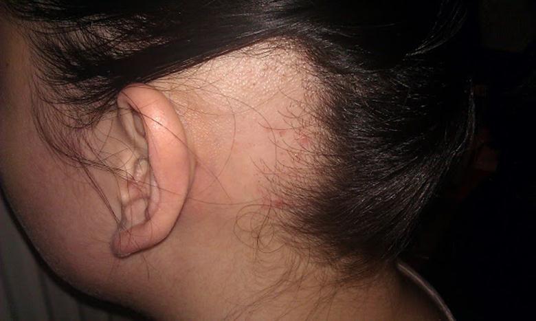 Облысение за ушами