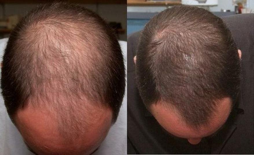 нейрорубин для волос