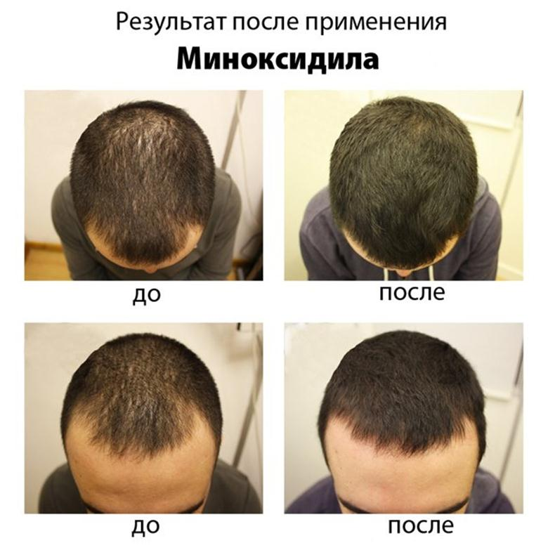 http://vivabeauty.ru/wp-content/uploads/2015/01/012015_0644_4.jpg