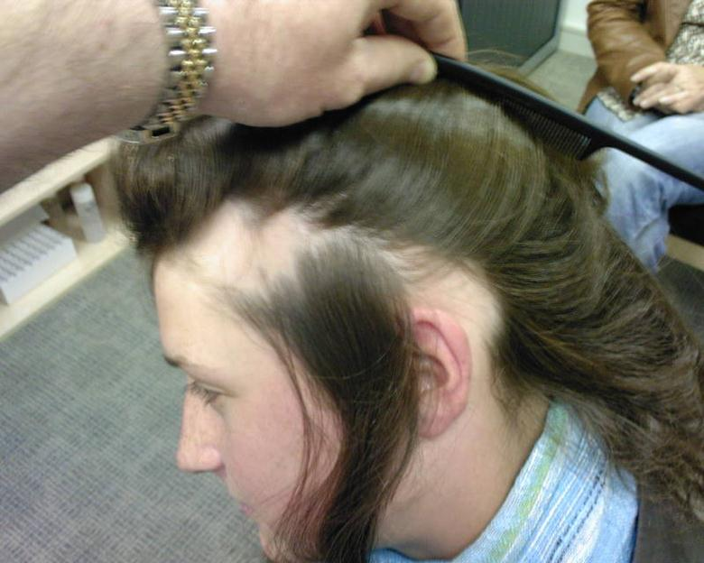 Что делать от выпадения волос на голове у девушки