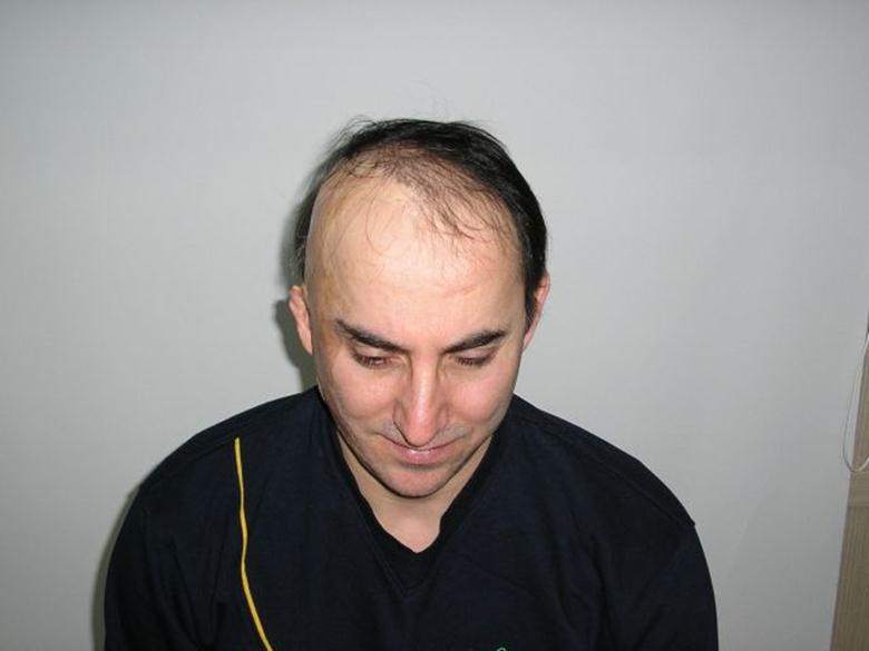 Шрамы на волосистой части головы