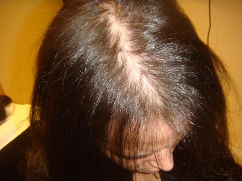 Ломаются волосы причины и лечение