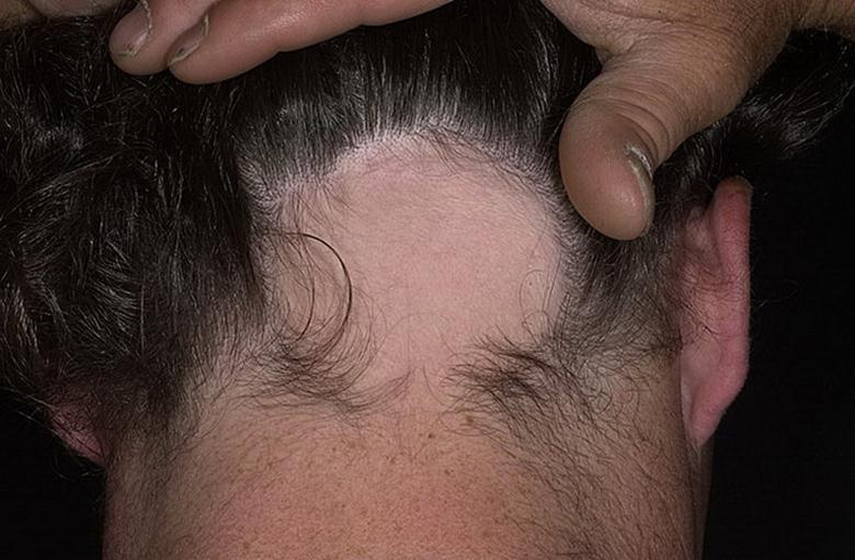 Ограниченное выпадение волос