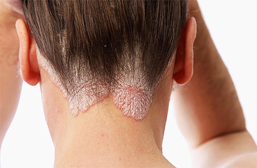 Раздражение кожи головы